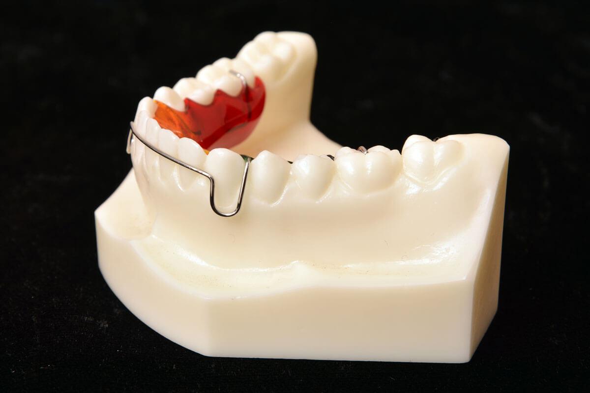 Retainers | Parklund Orthodontic Lab